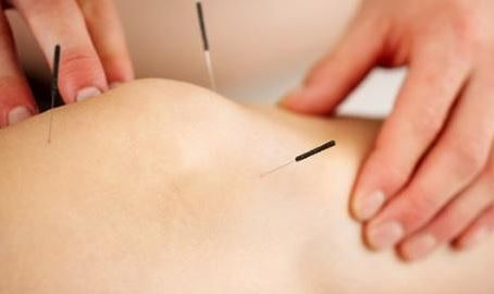Acupuncture and Sports Medicine