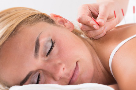 A Guide To Acupuncture in Gynecology